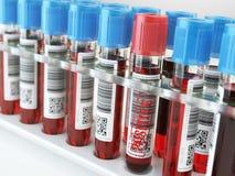 Muestra de sangre positiva y muchos otras tubos de ensayo de la sangre en un estante Imágenes de archivo libres de regalías