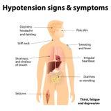 Muestras y síntomas de la hipotensión Imagen de archivo