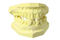 Muffa della protesi dentaria Fotografia Stock Libera da Diritti