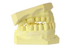 Muffa della protesi dentaria Fotografia Stock