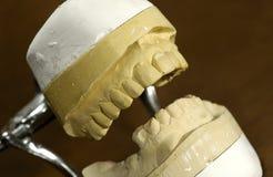 Muffa dentale Immagini Stock Libere da Diritti