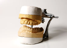 Muffa dentale Fotografia Stock