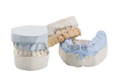 Muffa dentale Fotografie Stock Libere da Diritti