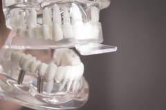 Muffe del silicone disposte sui denti falsi immagini stock