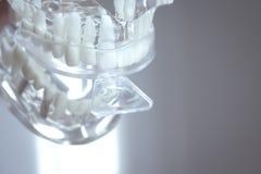 Muffe del silicone disposte sui denti falsi immagine stock libera da diritti