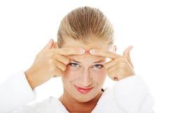 Mujer adolescente joven con la espinilla en su cara Fotografía de archivo