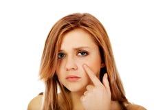 Mujer adolescente que señala en espinilla en su mejilla Imagen de archivo libre de regalías