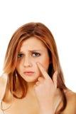 Mujer adolescente que señala en espinilla en su mejilla Fotos de archivo libres de regalías