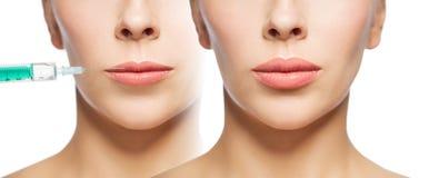 Mujer antes y después de la inyección de los llenadores del labio Imagen de archivo