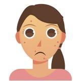 Mujer con acné ilustración del vector