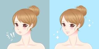 Mujer con cirugía de la barbilla ilustración del vector