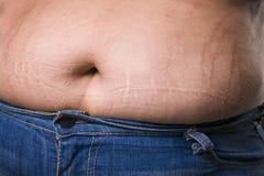 Mujer con el abdomen gordo en tejanos, estómago femenino gordo, marcas de estiramiento en el primer del vientre Imagen de archivo libre de regalías