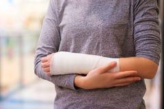 Mujer con el brazo quebrado Imágenes de archivo libres de regalías