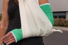 Mujer con el brazo quebrado Imagen de archivo libre de regalías