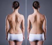 Mujer con la cicatriz grande en la parte posterior, antes después del concepto Fotos de archivo libres de regalías