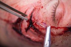 Mujer con la incisión preparada para la operación imagenes de archivo