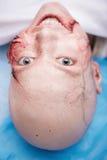 Mujer con la incisión preparada para la operación imágenes de archivo libres de regalías