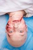 Mujer con la incisión preparada para la operación imagen de archivo libre de regalías