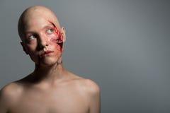 Mujer con la incisión preparada para la operación fotografía de archivo
