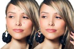 Mujer con la piel del problema en su cara fotos de archivo libres de regalías