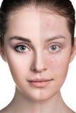 Mujer con la piel del problema en su cara fotos de archivo