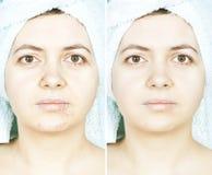 Mujer con la piel manchada con las cicatrices y las arrugas y curada Imagenes de archivo