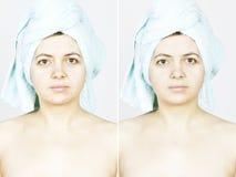 Mujer con la piel manchada con las cicatrices y las arrugas y curada Fotografía de archivo libre de regalías