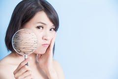 Mujer con la piel seca foto de archivo
