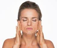 Mujer con las marcas de la cirugía plástica en cara foto de archivo