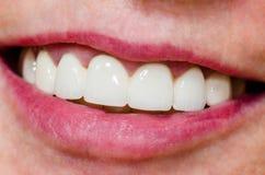 mujer con sonrisa brillante y los dientes blancos Foto de archivo libre de regalías