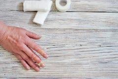 Mujer con una quemadura de la piel y de los fingeres, lesiones con el agua hirvienda, un accidente en casa, comportamiento descui fotos de archivo