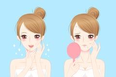 Mujer de la historieta con acné Ilustración del Vector