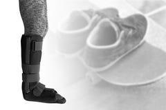 mujer de lesión con la tablilla negra en la pierna que se coloca en backgr borroso fotografía de archivo