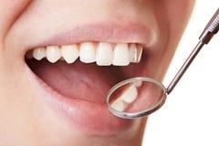 Mujer en treatmant dental Foto de archivo