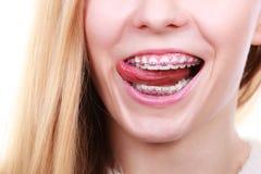 Mujer feliz que muestra sus apoyos en los dientes Imagen de archivo