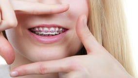 Mujer feliz que muestra sus apoyos en los dientes Fotos de archivo libres de regalías