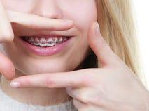 Mujer feliz que muestra sus apoyos en los dientes Imágenes de archivo libres de regalías