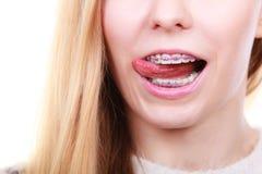 Mujer feliz que muestra sus apoyos en los dientes Foto de archivo
