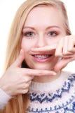 Mujer feliz que muestra sus apoyos en los dientes Fotografía de archivo