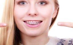 Mujer feliz que muestra sus apoyos en los dientes Imagen de archivo libre de regalías