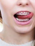 Mujer feliz que muestra sus apoyos en los dientes Fotografía de archivo libre de regalías