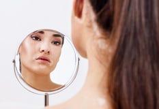 Mujer hermosa con el vitiligo que mira en el espejo imagen de archivo