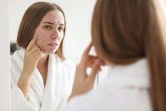 Mujer joven con el espejo cercano del problema del acné foto de archivo libre de regalías