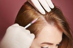 Mujer joven con el problema de la pérdida de pelo que recibe la inyección imagen de archivo libre de regalías