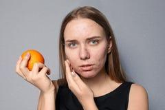 Mujer joven con el problema del acné que sostiene la naranja imagen de archivo