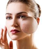 Mujer joven con la piel del acné en círculo del enfoque Imágenes de archivo libres de regalías