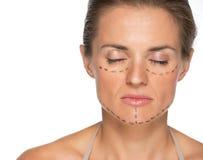 Mujer joven con las marcas de la cirugía plástica imagen de archivo