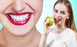 Mujer joven con los soportes en los dientes que come la manzana Imagen de archivo