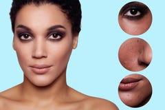 Mujer joven de la belleza de la piel antes y después del procedimiento Imágenes de archivo libres de regalías