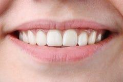 Mujer joven hermosa con los dientes sanos en el fondo blanco dientes de la mujer y cierre de la sonrisa para arriba imagenes de archivo